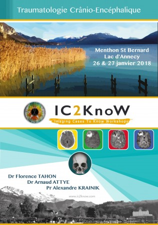 Affiche_IC2KnoW_jan2018_Trauma.jpg